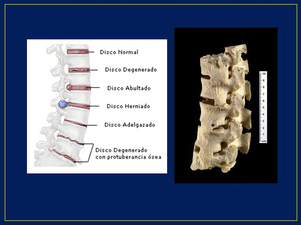 Durante el proceso de degeneración discal se produce una pérdida de altura en el disco, por la disminución de volumen a expensas del descenso de agua de la matriz extracelular del núcleo pulposo.