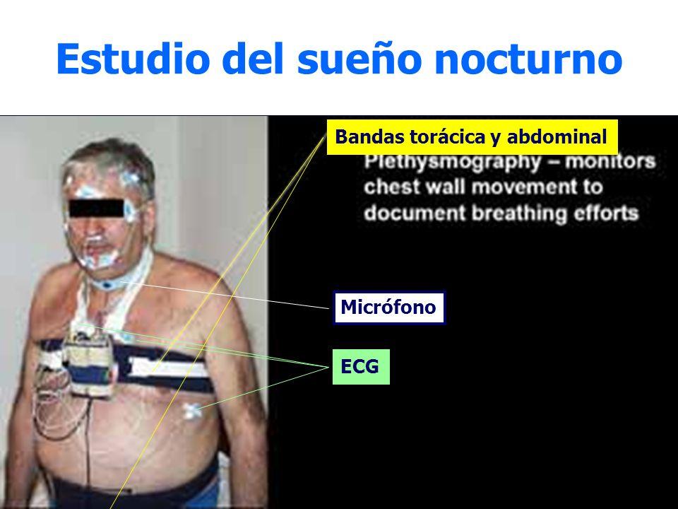 Estudio del sueño nocturno Micrófono Bandas torácica y abdominal ECG