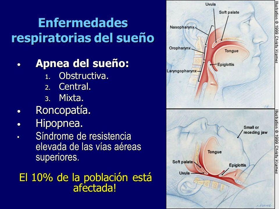Enfermedades respiratorias del sueño Apnea del sueño: Apnea del sueño: 1. Obstructiva. 2. Central. 3. Mixta. Roncopatía. Roncopatía. Hipopnea. Hipopne