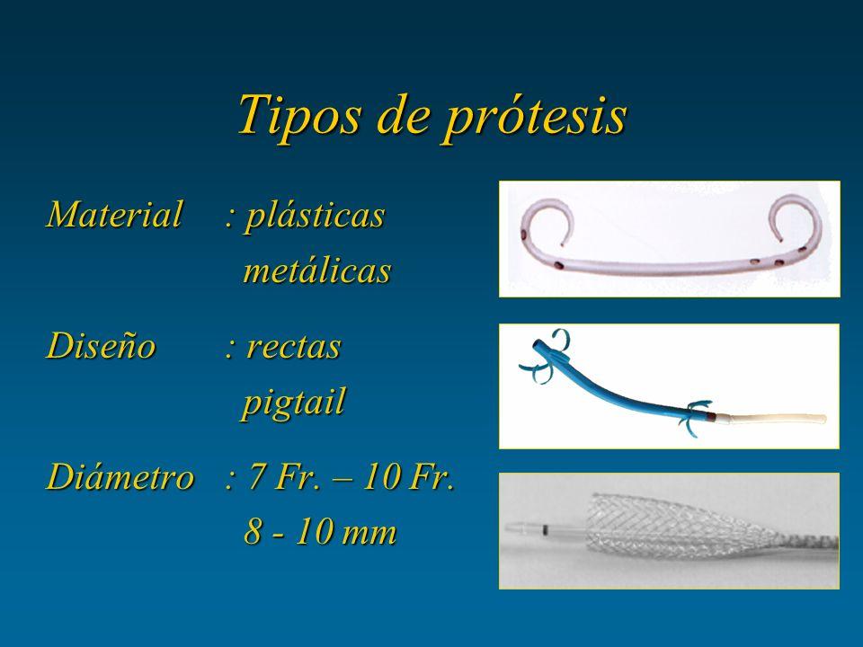 Tipos de prótesis Material: plásticas metálicas metálicas Diseño: rectas pigtail pigtail Diámetro: 7 Fr. – 10 Fr. 8 - 10 mm 8 - 10 mm