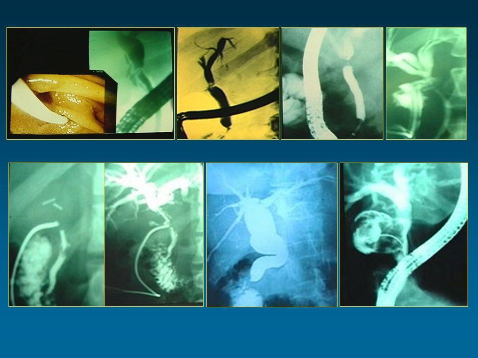 Tumores T1 43% sin Microinvasión Linfo vascular Sin Metastasis Ganglionares Con metastasis ganglionares 57% con Microinvasión Linfo vascular Evidencia reciente sugiere que la mayoría de carcinomas T1´ no tienen metástasis ganglionares Sobrevida de los T1 según la presencia de microinvasión Linfovascular 100% 82% 100 10 10% 18% 90 90%