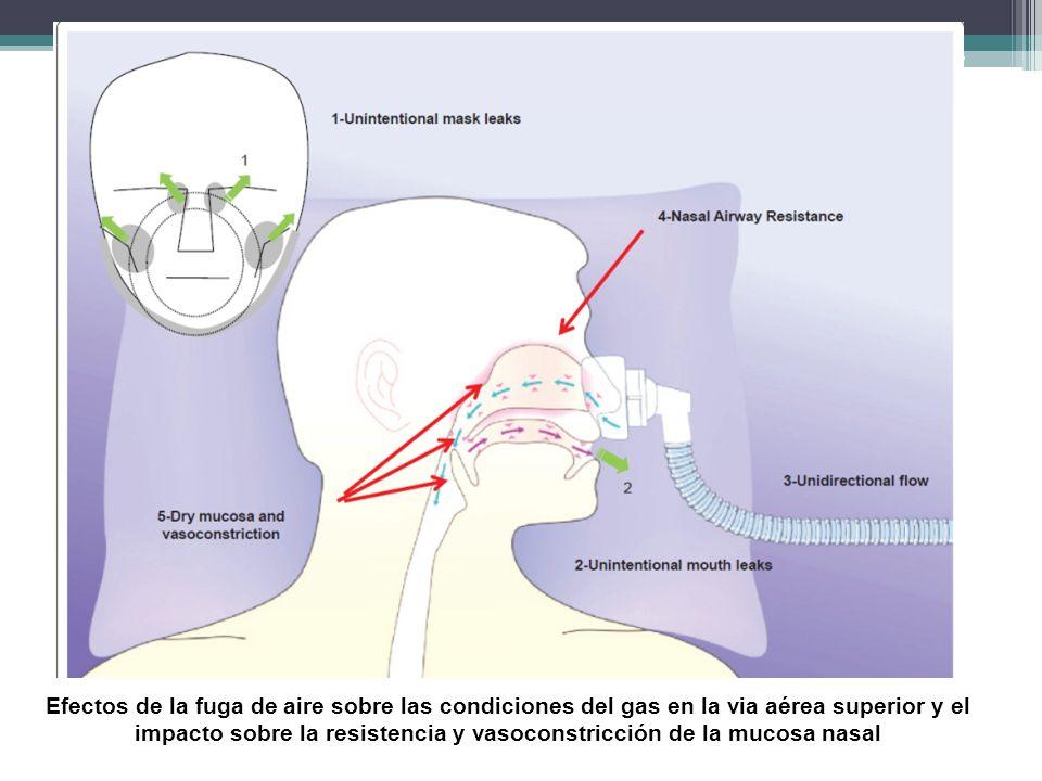 Mensaje para recordar La asincronía paciente –ventilador durante la VNI está relacionada a la patología de base, y a la presencia de fugas.