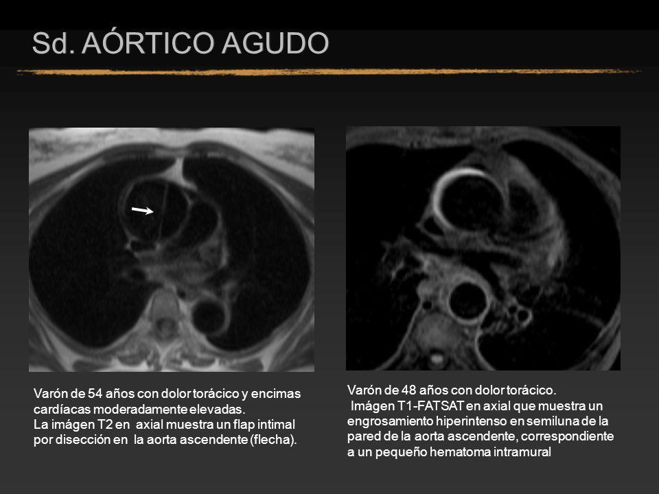Varón de 54 años con dolor torácico y encimas cardíacas moderadamente elevadas. La imágen T2 en axial muestra un flap intimal por disección en la aort