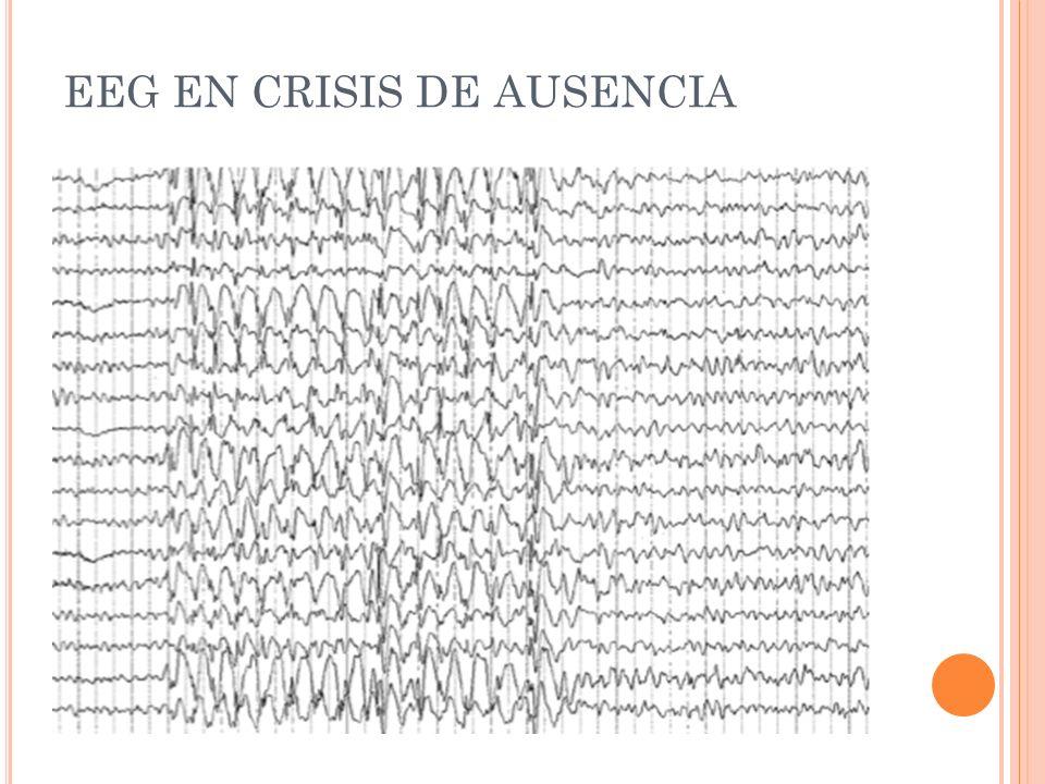 EEG EN CRISIS DE AUSENCIA