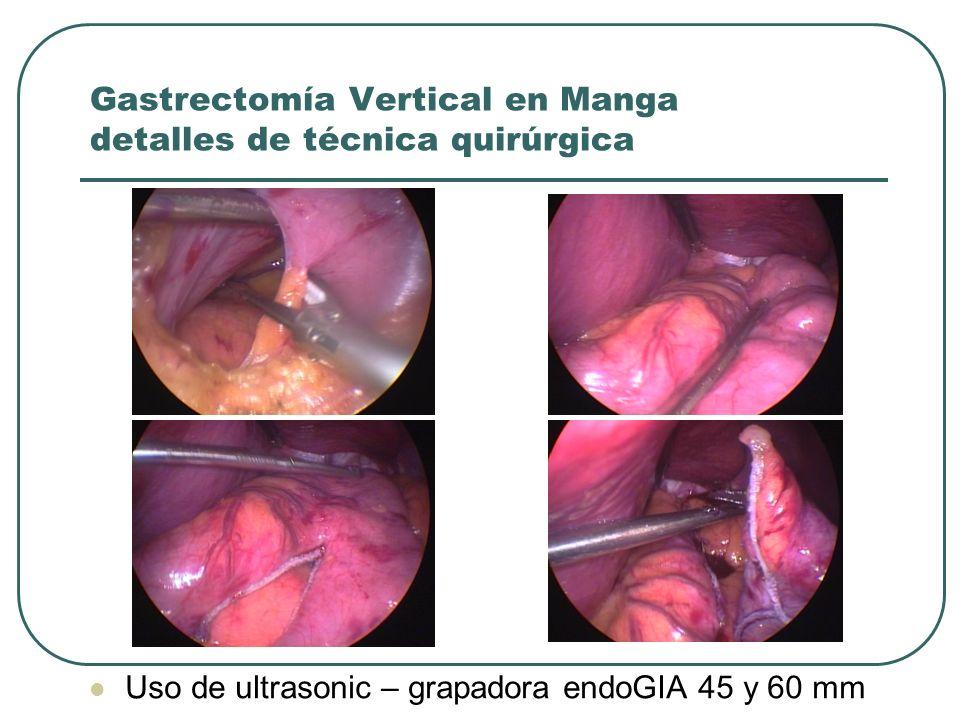 Gastrectomía Vertical en Manga detalles de técnica quirúrgica Uso de ultrasonic – grapadora endoGIA 45 y 60 mm