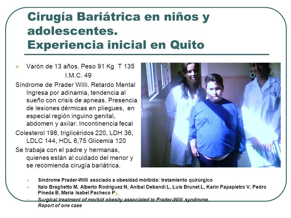 Cirugía Bariátrica en niños y adolescentes. Experiencia inicial en Quito Varón de 13 años. Peso 91 Kg T 135 I.M.C. 49 Síndrome de Prader Willi. Retard