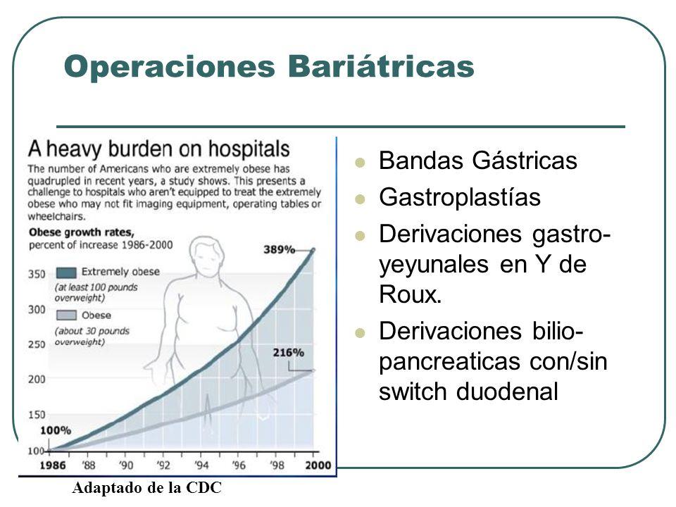 Operaciones Bariátricas Bandas Gástricas Gastroplastías Derivaciones gastro- yeyunales en Y de Roux. Derivaciones bilio- pancreaticas con/sin switch d