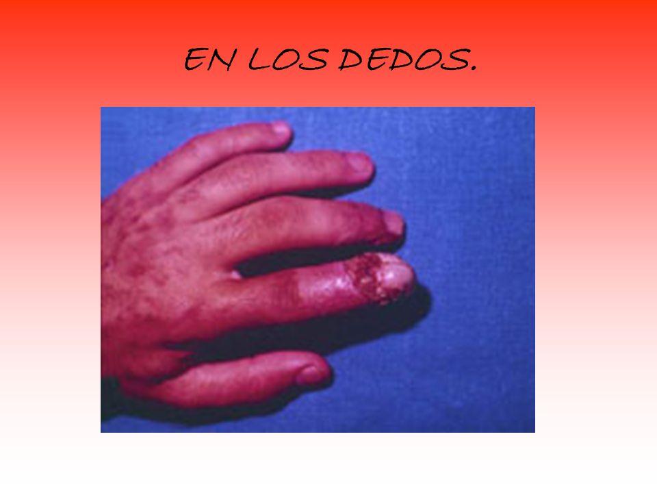 EN LOS DEDOS.
