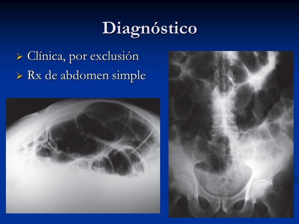 Diagnóstico Clínica, por exclusión Clínica, por exclusión Rx de abdomen simple Rx de abdomen simple