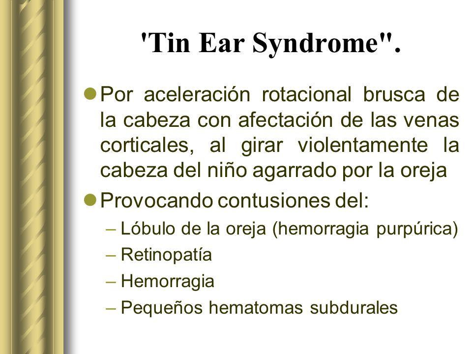 'Tin Ear Syndrome