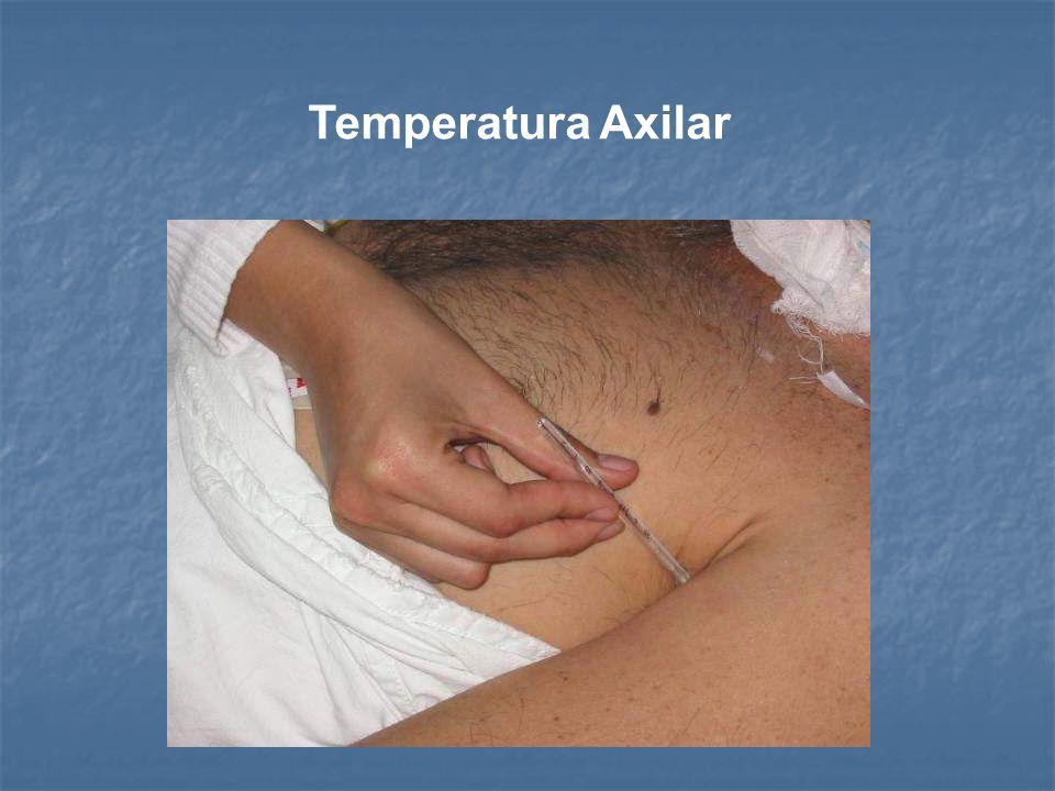 Verificar que la columna de mercurio marque 35º C. Pedir al paciente que abra la boca colocando el extremo del termómetro (bulbo) debajo de la lengua