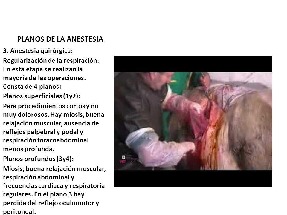 PLANOS DE LA ANESTESIA 3. Anestesia quirúrgica: Regularización de la respiración. En esta etapa se realizan la mayoría de las operaciones. Consta de 4