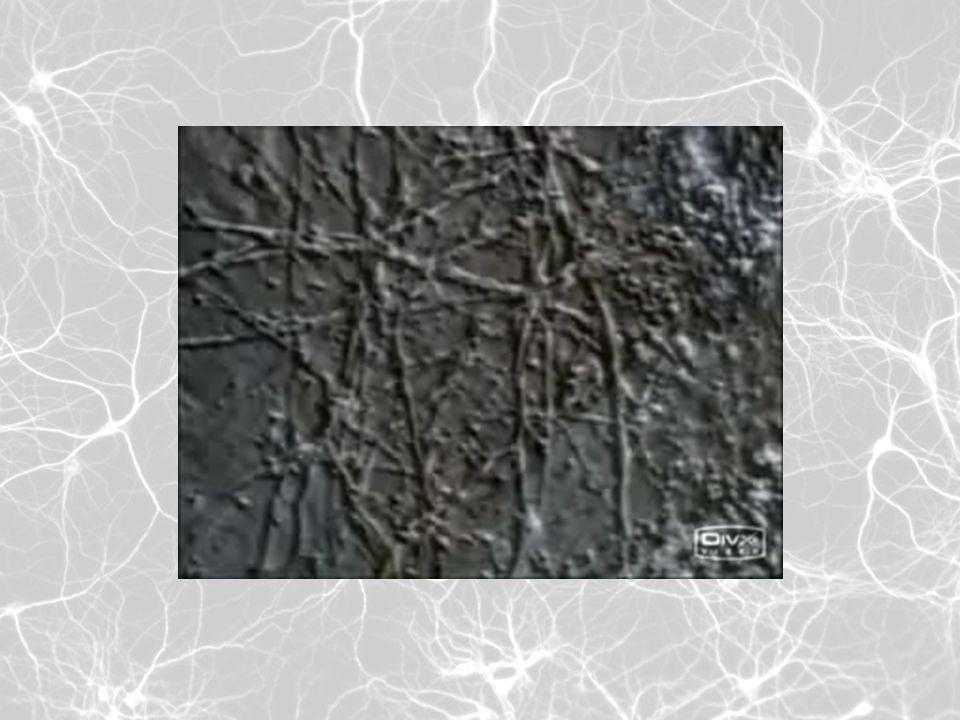 Dentro de las estructuras de la neurona que nos interesa destacar se encuentran: Cuerpo celular: también llamado soma; en él se encuentra el núcleo celular y la mayor parte del citoplasma.