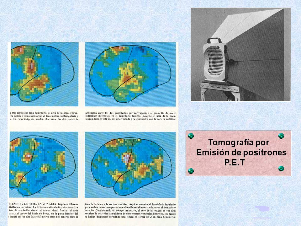RESONANCIA NUCLEAR MAGNETICA