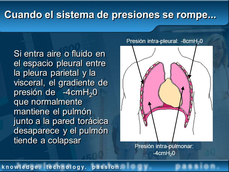 Cuando el sistema de presiones se rompe... Si entra aire o fluido en el espacio pleural entre la pleura parietal y la visceral, el gradiente de presió