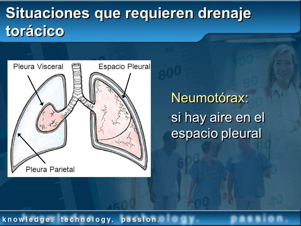 Situaciones que requieren drenaje torácico Neumotórax: si hay aire en el espacio pleural Pleura Parietal Pleura VisceralEspacio Pleural