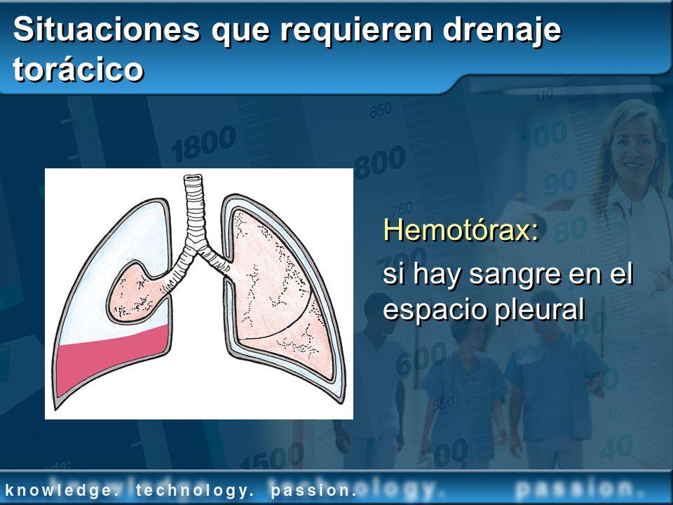 Situaciones que requieren drenaje torácico Hemotórax: si hay sangre en el espacio pleural