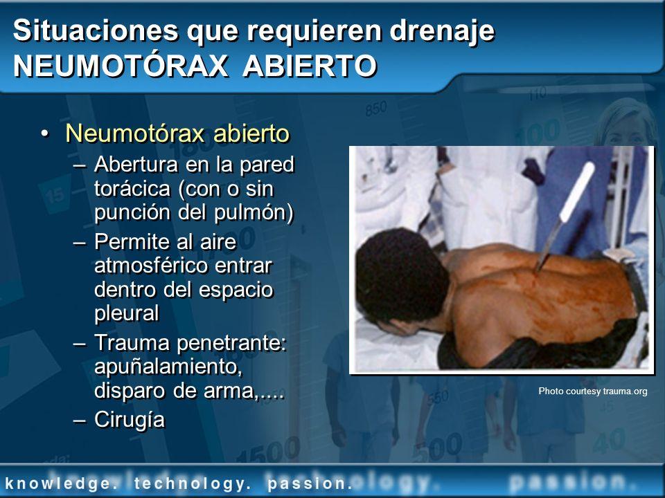 Situaciones que requieren drenaje NEUMOTÓRAX ABIERTO Neumotórax abierto –Abertura en la pared torácica (con o sin punción del pulmón) –Permite al aire