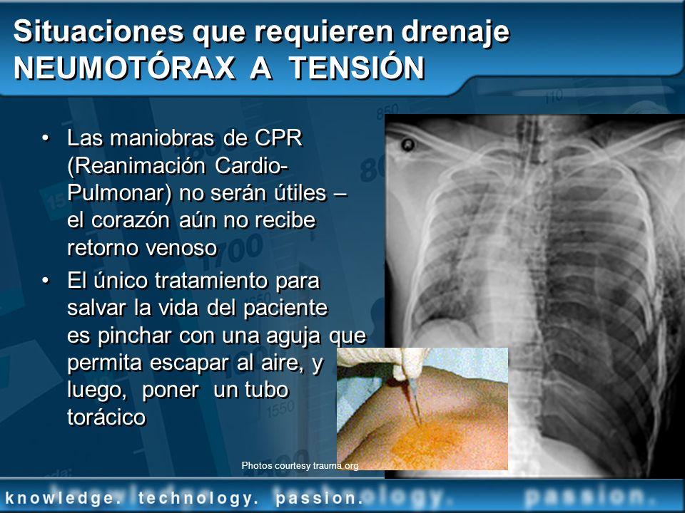 Situaciones que requieren drenaje NEUMOTÓRAX A TENSIÓN Las maniobras de CPR (Reanimación Cardio- Pulmonar) no serán útiles – el corazón aún no recibe