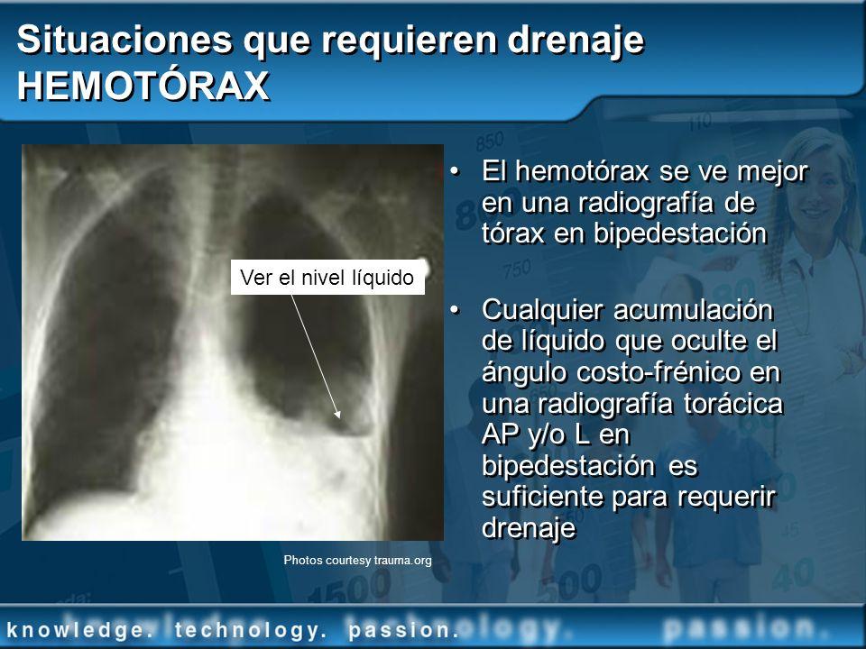 Situaciones que requieren drenaje HEMOTÓRAX El hemotórax se ve mejor en una radiografía de tórax en bipedestación Cualquier acumulación de líquido que