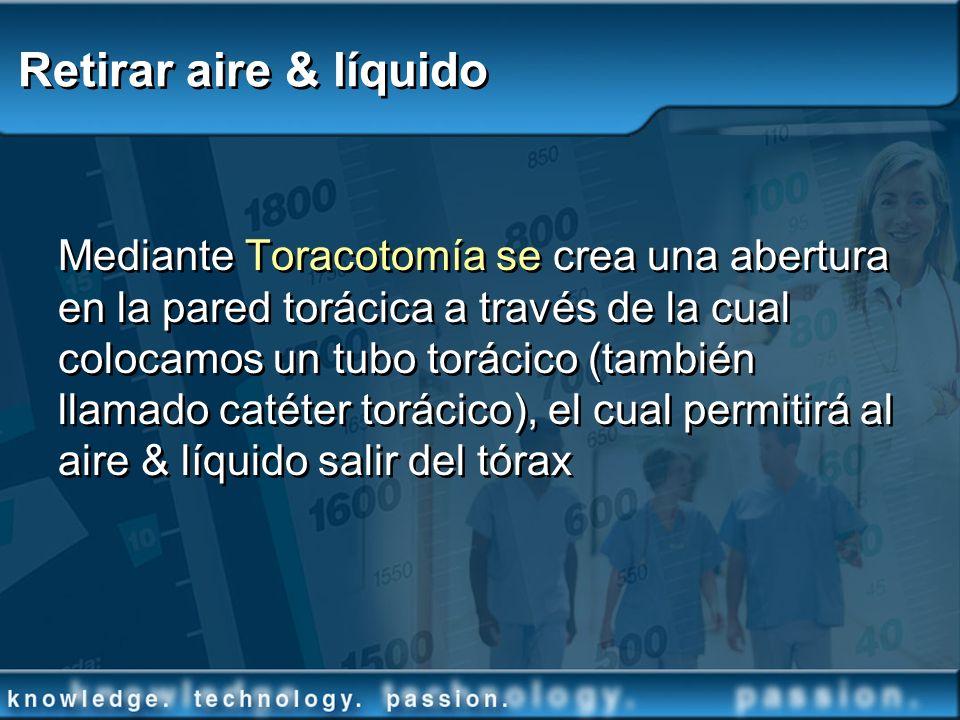 Retirar aire & líquido Mediante Toracotomía se crea una abertura en la pared torácica a través de la cual colocamos un tubo torácico (también llamado