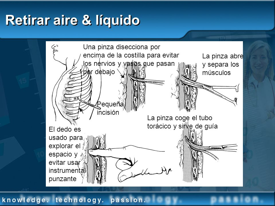 Retirar aire & líquido Una pinza disecciona por encima de la costilla para evitar los nervios y vasos que pasan por debajo La pinza abre y separa los