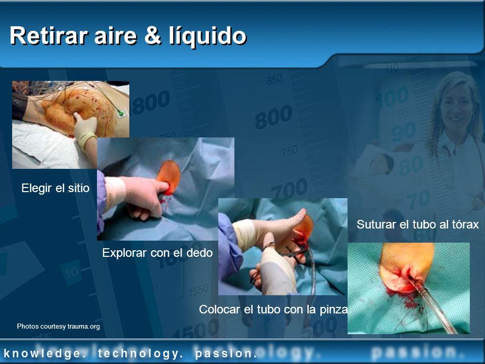 Retirar aire & líquido Elegir el sitio Explorar con el dedo Colocar el tubo con la pinza Suturar el tubo al tórax Photos courtesy trauma.org