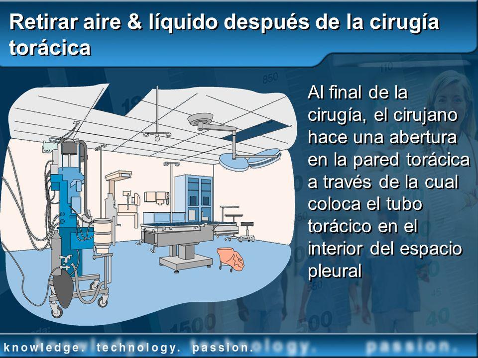 Retirar aire & líquido después de la cirugía torácica Al final de la cirugía, el cirujano hace una abertura en la pared torácica a través de la cual c