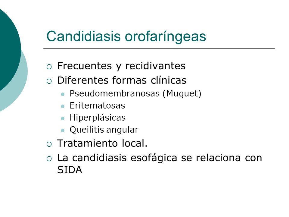 Candidiasis orofaríngeas Frecuentes y recidivantes Diferentes formas clínicas Pseudomembranosas (Muguet) Eritematosas Hiperplásicas Queilitis angular