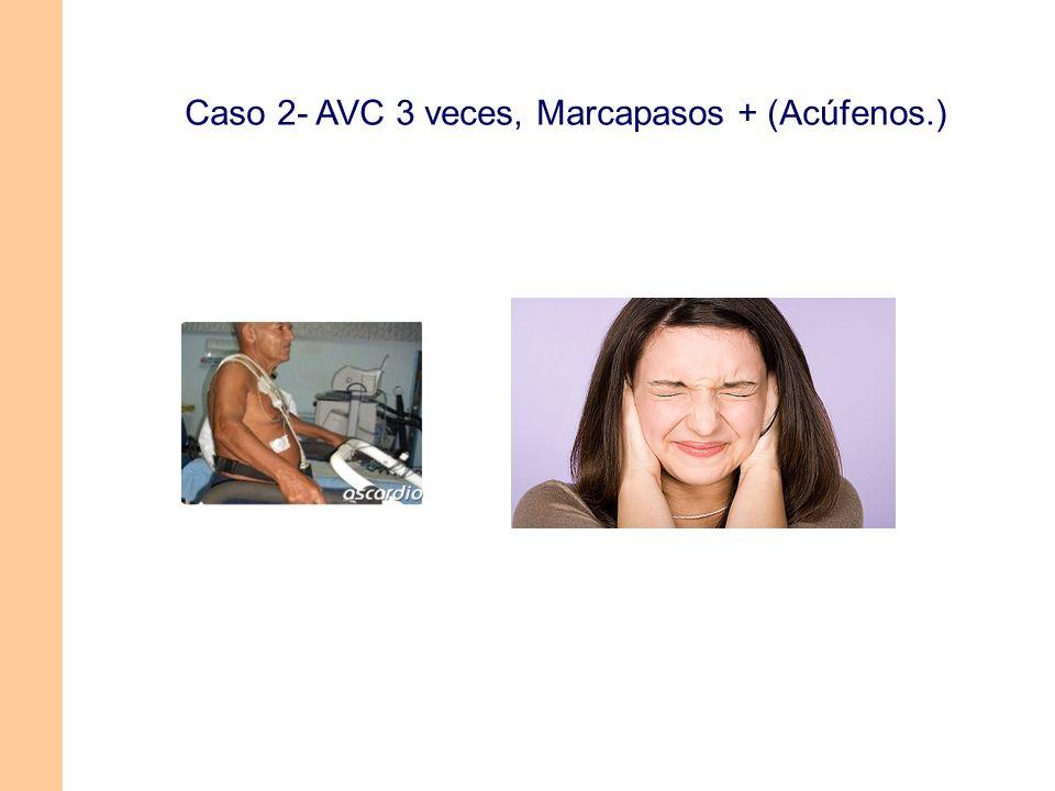 Caso 2- AVC 3 veces, Marcapasos + (Acúfenos.)