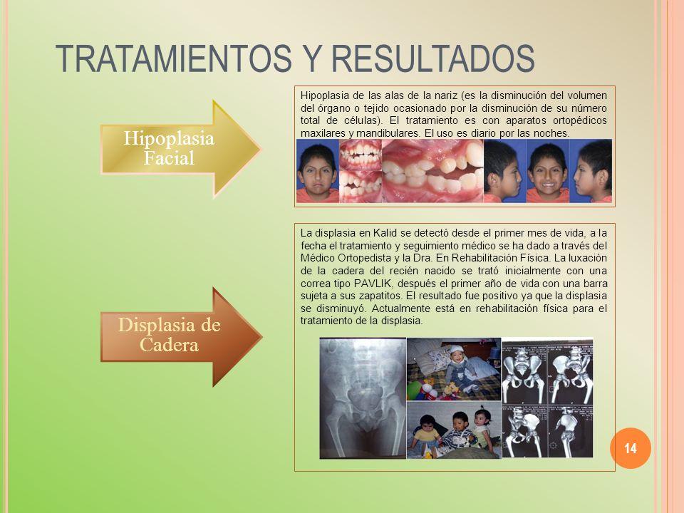TRATAMIENTOS Y RESULTADOS 14 Hipoplasia de las alas de la nariz (es la disminución del volumen del órgano o tejido ocasionado por la disminución de su