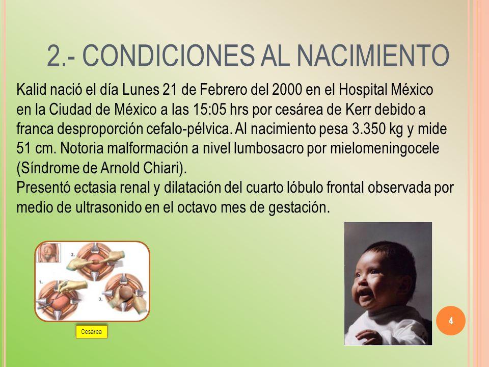 4 2.- CONDICIONES AL NACIMIENTO Kalid nació el día Lunes 21 de Febrero del 2000 en el Hospital México en la Ciudad de México a las 15:05 hrs por cesár