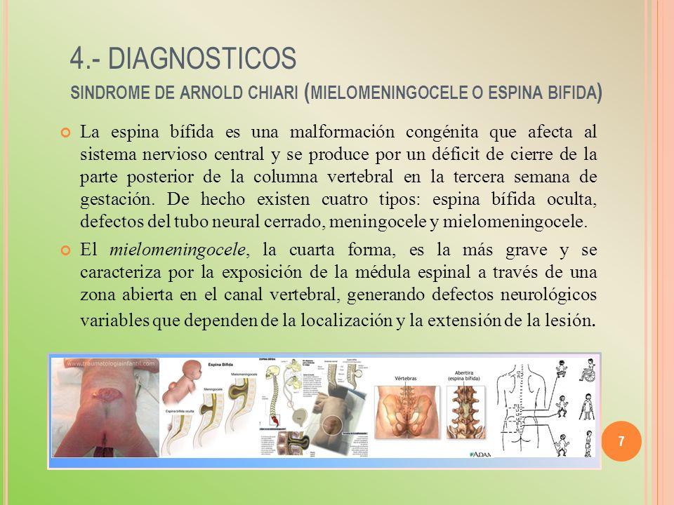 7 4.- DIAGNOSTICOS SINDROME DE ARNOLD CHIARI ( MIELOMENINGOCELE O ESPINA BIFIDA ) La espina bífida es una malformación congénita que afecta al sistema