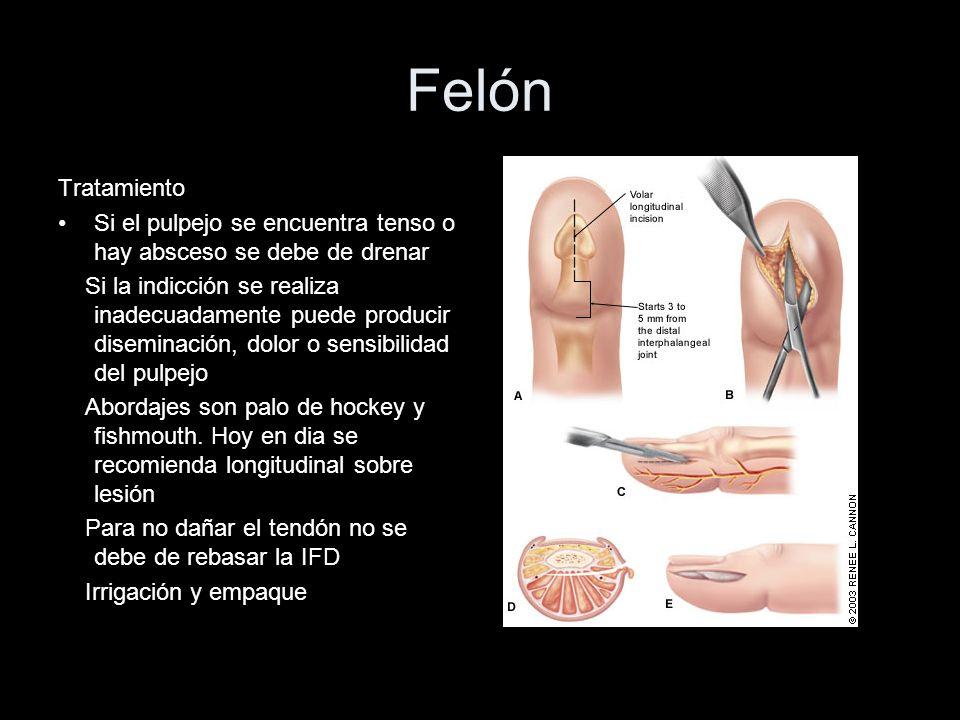 Felón Tratamiento Si el pulpejo se encuentra tenso o hay absceso se debe de drenar Si la indicción se realiza inadecuadamente puede producir diseminac