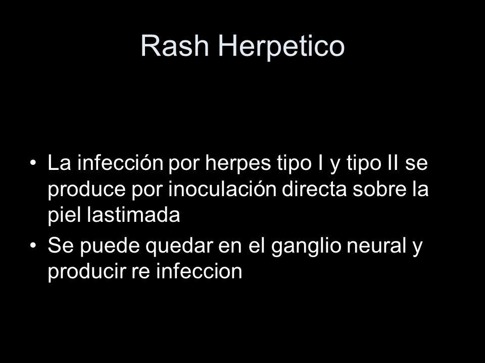 Rash Herpetico La infección por herpes tipo I y tipo II se produce por inoculación directa sobre la piel lastimada Se puede quedar en el ganglio neura