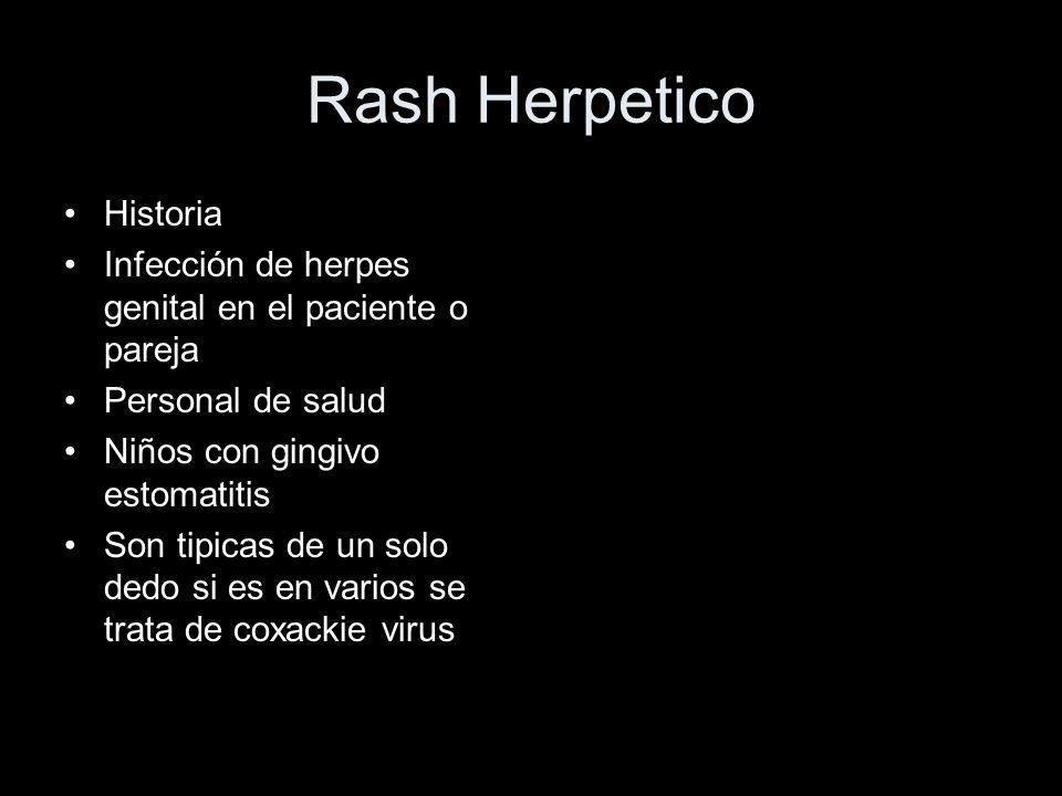 Rash Herpetico Historia Infección de herpes genital en el paciente o pareja Personal de salud Niños con gingivo estomatitis Son tipicas de un solo ded