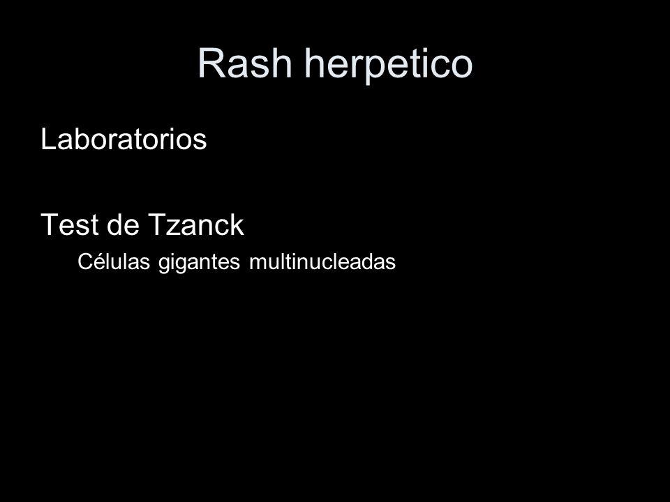 Rash herpetico Laboratorios Test de Tzanck Células gigantes multinucleadas