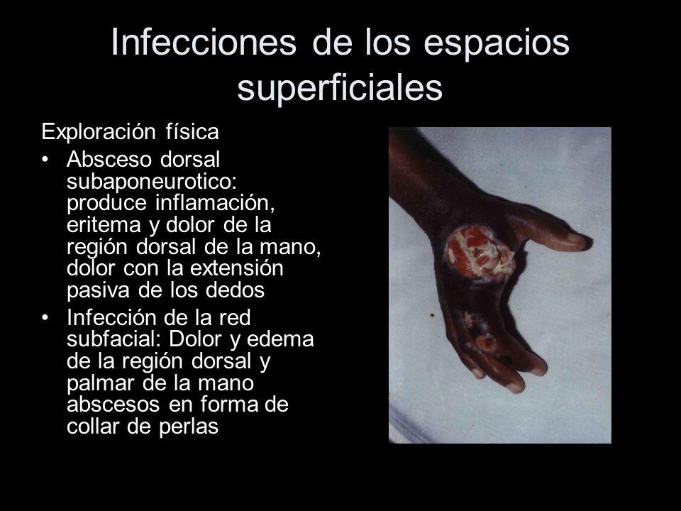 Infecciones de los espacios superficiales Exploración física Absceso dorsal subaponeurotico: produce inflamación, eritema y dolor de la región dorsal