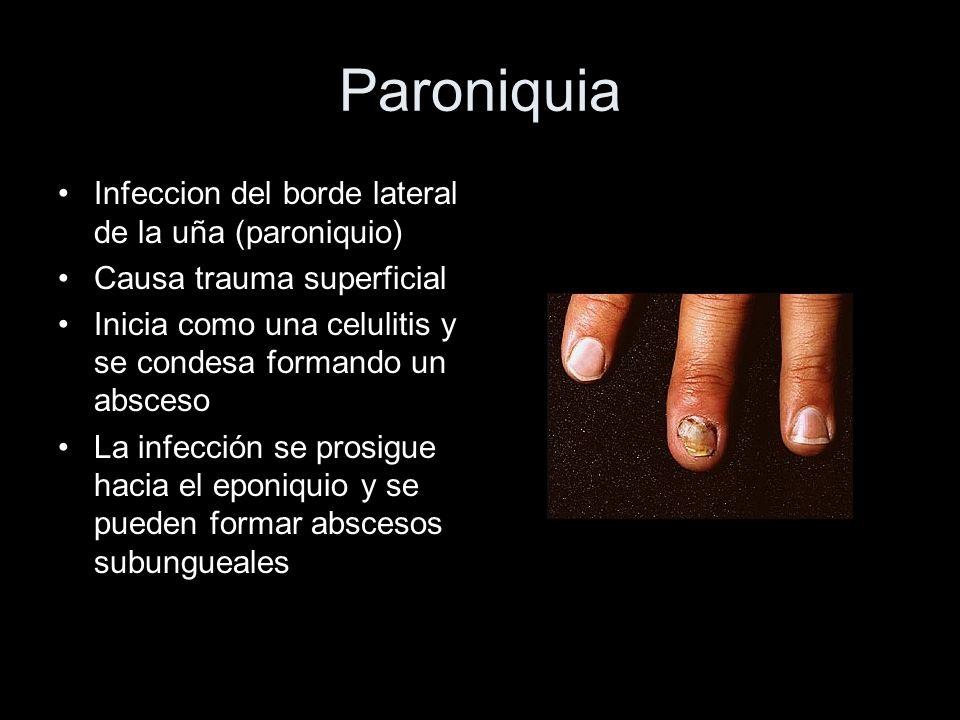 Paroniquia Infeccion del borde lateral de la uña (paroniquio) Causa trauma superficial Inicia como una celulitis y se condesa formando un absceso La i