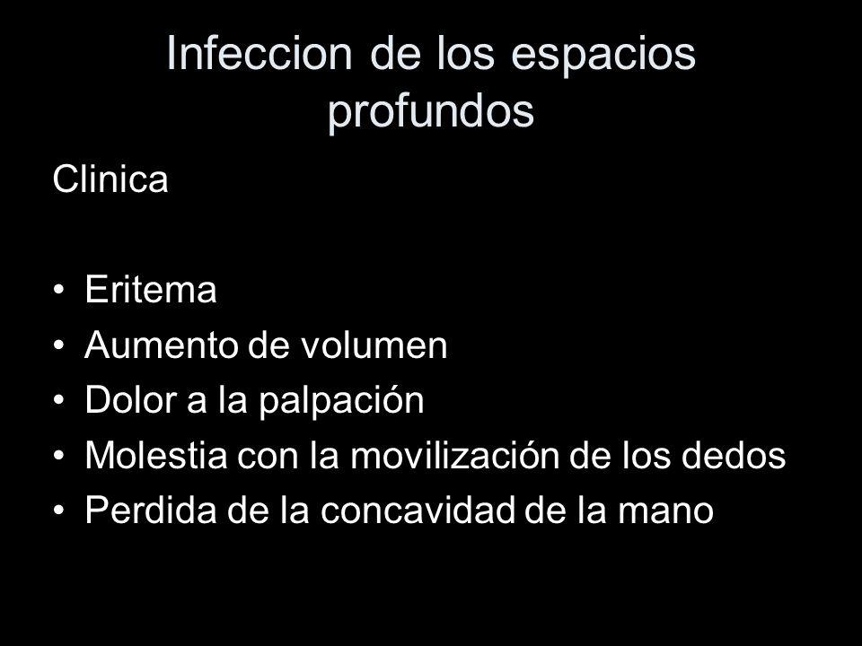 Infeccion de los espacios profundos Clinica Eritema Aumento de volumen Dolor a la palpación Molestia con la movilización de los dedos Perdida de la co