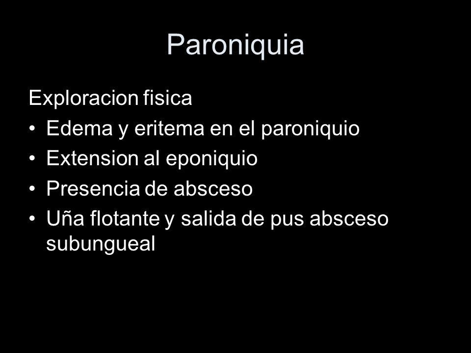 Paroniquia Exploracion fisica Edema y eritema en el paroniquio Extension al eponiquio Presencia de absceso Uña flotante y salida de pus absceso subung