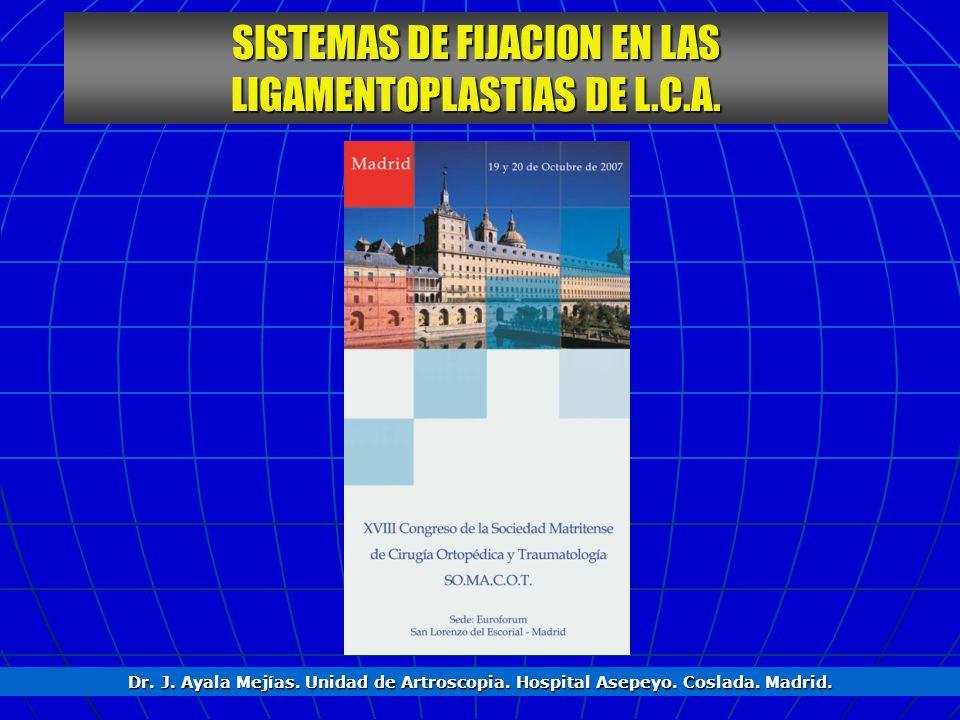 SISTEMAS DE FIJACION EN LAS LIGAMENTOPLASTIAS DE L.C.A. Dr. J. Ayala Mejías. Unidad de Artroscopia. Hospital Asepeyo. Coslada. Madrid.