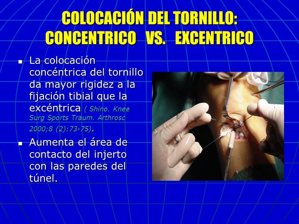 COLOCACIÓN DEL TORNILLO: CONCENTRICO VS. EXCENTRICO La colocación concéntrica del tornillo da mayor rigidez a la fijación tibial que la excéntrica ( S