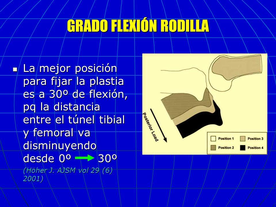 GRADO FLEXIÓN RODILLA La mejor posición para fijar la plastia es a 30º de flexión, pq la distancia entre el túnel tibial y femoral va disminuyendo des