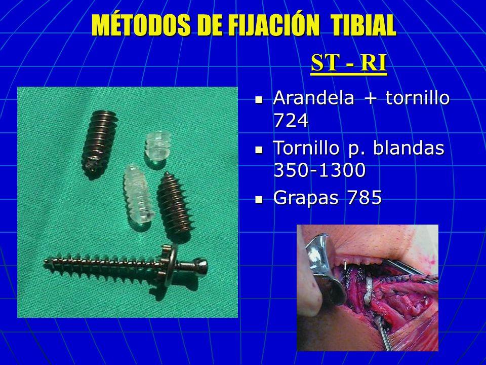 MÉTODOS DE FIJACIÓN TIBIAL Arandela + tornillo 724 Arandela + tornillo 724 Tornillo p. blandas 350-1300 Tornillo p. blandas 350-1300 Grapas 785 Grapas
