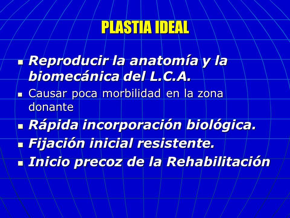 PLASTIA IDEAL Reproducir la anatomía y la biomecánica del L.C.A. Reproducir la anatomía y la biomecánica del L.C.A. Causar poca morbilidad en la zona