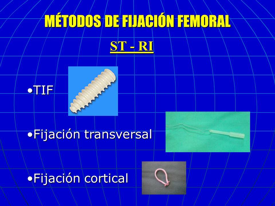 MÉTODOS DE FIJACIÓN FEMORAL ST - RI TIFTIF Fijación transversalFijación transversal Fijación corticalFijación cortical