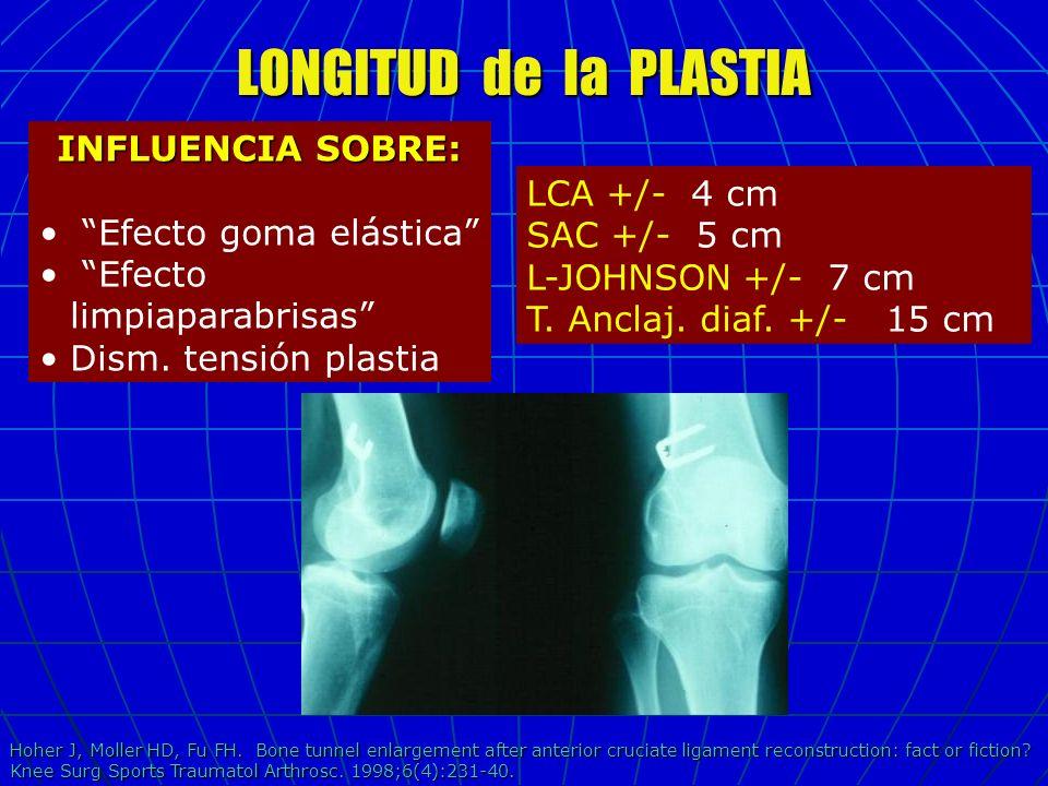 LONGITUD de la PLASTIA INFLUENCIA SOBRE: Efecto goma elástica Efecto limpiaparabrisas Dism. tensión plastia LCA +/- 4 cm SAC +/- 5 cm L-JOHNSON +/- 7