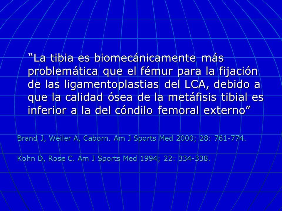 La tibia es biomecánicamente más problemática que el fémur para la fijación de las ligamentoplastias del LCA, debido a que la calidad ósea de la metáf