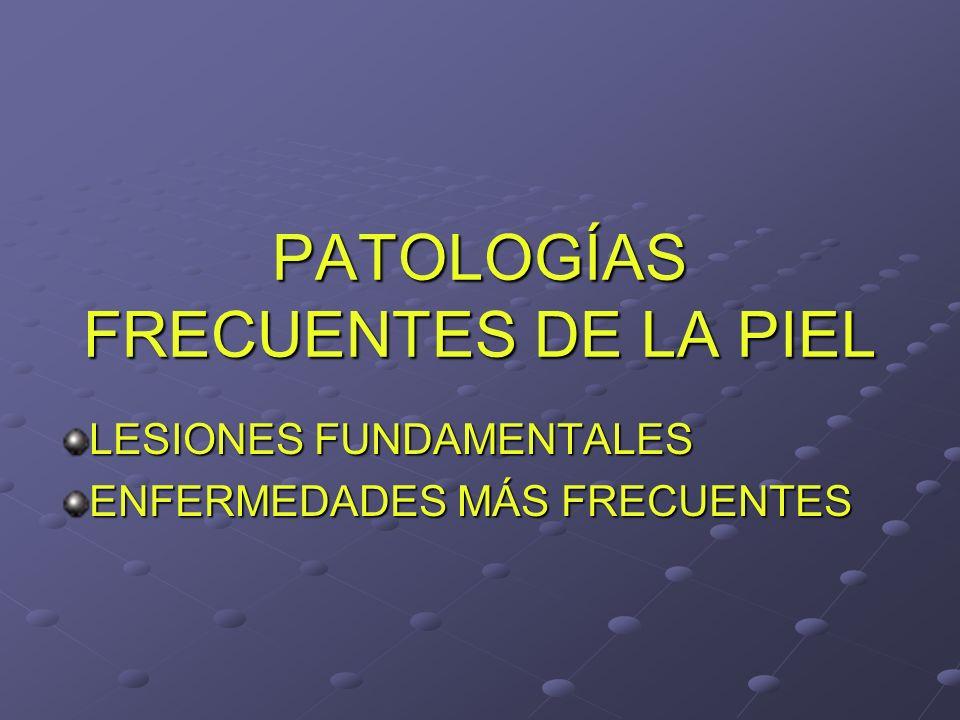PATOLOGÍAS FRECUENTES DE LA PIEL LESIONES FUNDAMENTALES ENFERMEDADES MÁS FRECUENTES